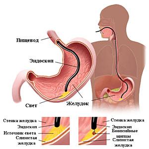 гастроскопия желудка под наркозом 1
