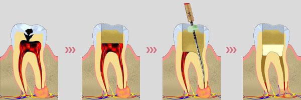 лечение кисты зуба фото