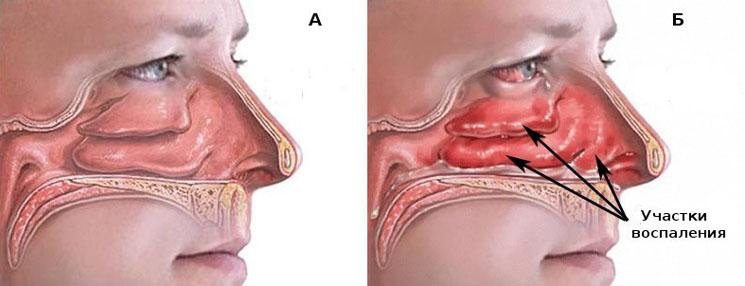 лечение вазомоторного ринита 1